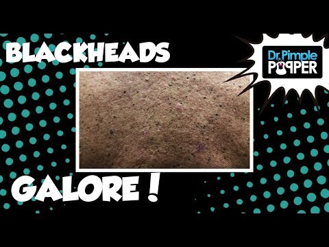 Blackheads Galore