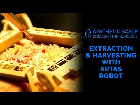 Extraction and Harvesting with the ARTAS Robot