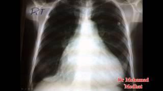Cardiology CXR Dr Mohamad Medhat