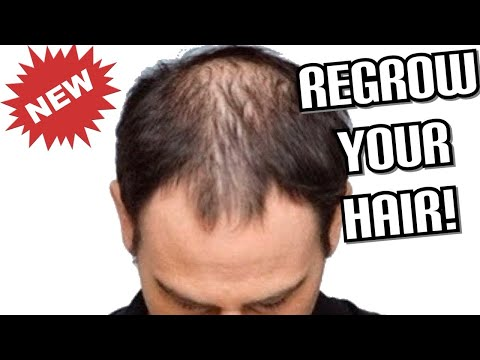 How to REGROW Your Hair FAST! | Male Pattern Baldness | Receding Hairline | Bald Spots | Vicks