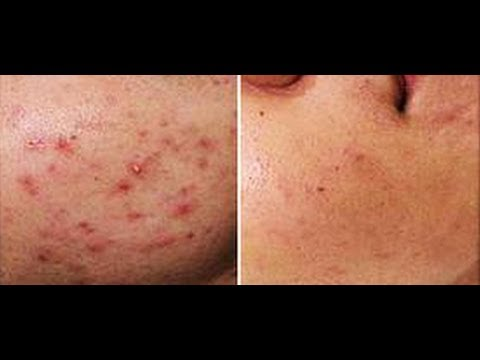 HOW TO GET RID OF ACNE SCARS: BANISHACNESCARS FAQ