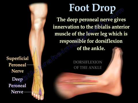 Foot Drop, Peroneal Nerve Injury - Everything You Need To Know - Dr. Nabil Ebraheim