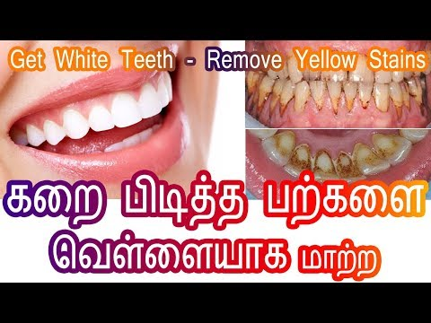 How to remove yellow stains from teeth - Get White Teeth - பற்களில் மஞ்சள் கறை - Tamil Beauty Tips