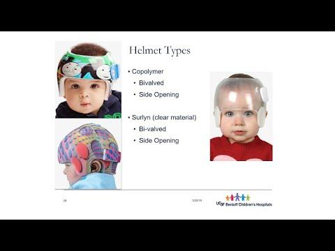 Cranial Remolding Helmets