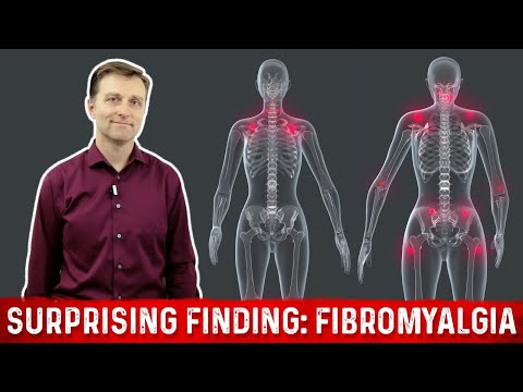 A Surprising Finding with Fibromyalgia