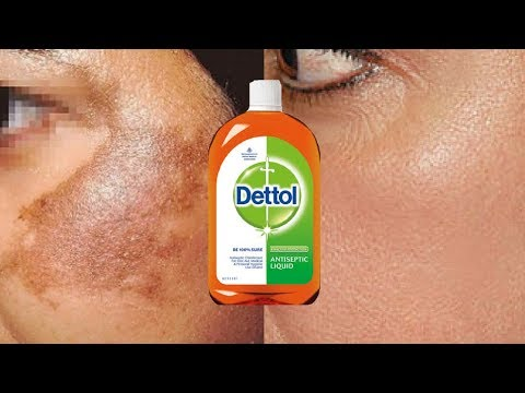 How To Use Dettol To Treat Skin Pigmentation, Dark Spots, Acne Scars Easily At Home | Home Remedies