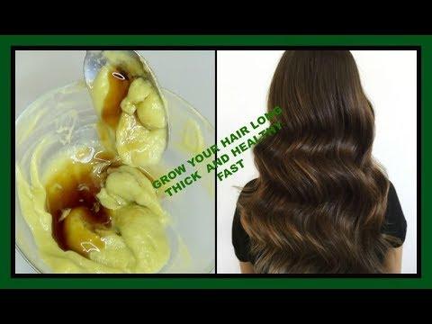 GROW YOUR HAIR 5X FASTER, GET RID OF DANDRUFF, DRY SCALP, SPLIT ENDS + BALD SPOTS |Khichi Beauty