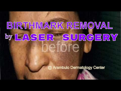 birth mark,Nevus of Ota  laser removal Philippines and Asia.wmv