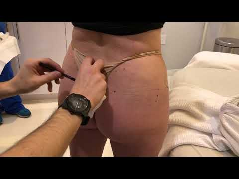 Non-Surgical Butt Lift with Dr. Michael Zadeh