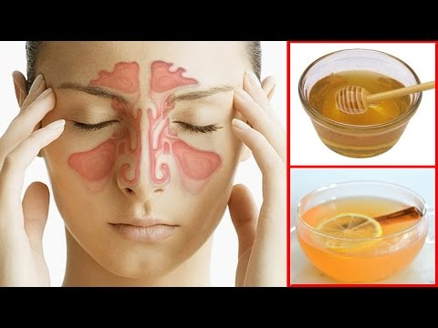 How To Get Rid of a Sinus Headache Fast | Sinus Pressure Relief