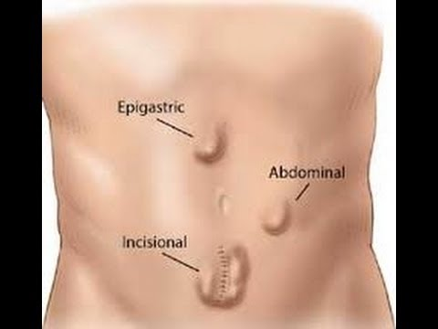 Hernia Facts and Info