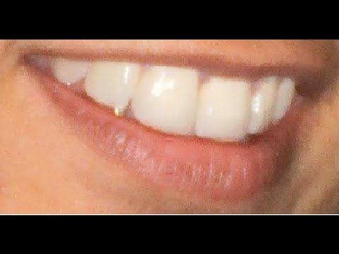 Remineralize Teeth - Teeth Can Heal Themselves From Tooth Decay Naturally!