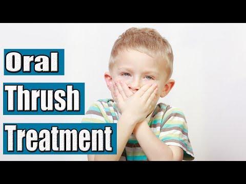 How to Treat Thrush | Oral Thrush Treatment
