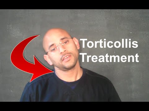 Atlanta Chiropractor Torticollis Treatment and Exercises - Car Accident Doctor Atlanta