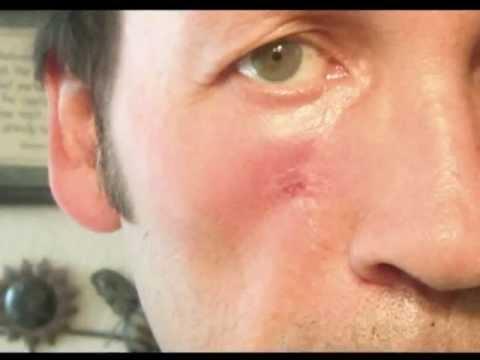 My Skin Cancer Story
