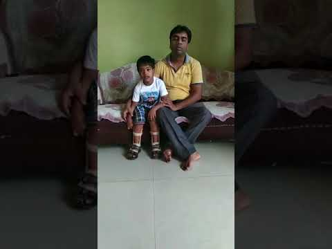 Treated cerebral palsy  patient by HBOT & PHYSIOTHERAY.