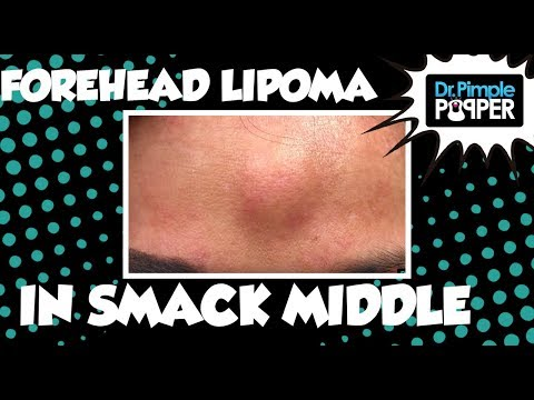 Smack in the Middle Forehead Lipoma