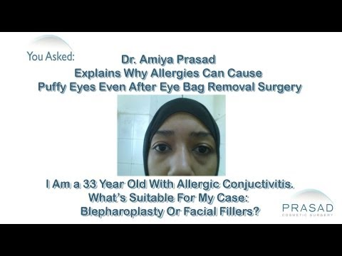 How Allergies Can Cause Puffy Eye Bags even after Eyelid Surgery