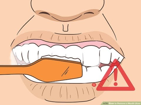 Mouth Ulcer Treatment - 5 Ways to Remove a Mouth Ulcer At Home Immediately - Health 365