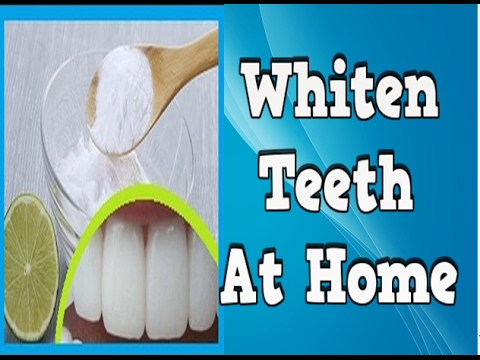 Whiten Teeth At Home, How Long Does Teeth Whitening Last, Ways To Whiten Your Teeth At Home