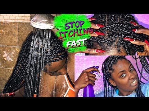 Box Braid Series: Stop itchy scalp FAST | alexuscrown