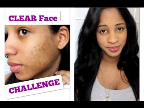 CLEAR Face w/ BAKING SODA CHALLENGE & HOW I: COVER My Acne Scars  ♥
