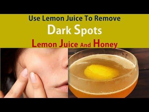Use Lemon Juice To Remove Dark Spots - Get Rid Dark Spots With Lemon Juice And Honey Home Remedy