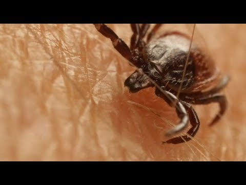 Lyme disease: How to protect yourself this summer