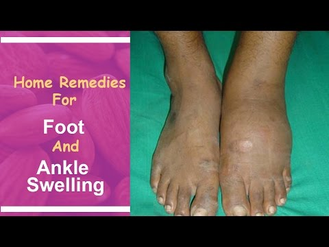 home Remedies For Foot And Ankle Swelling