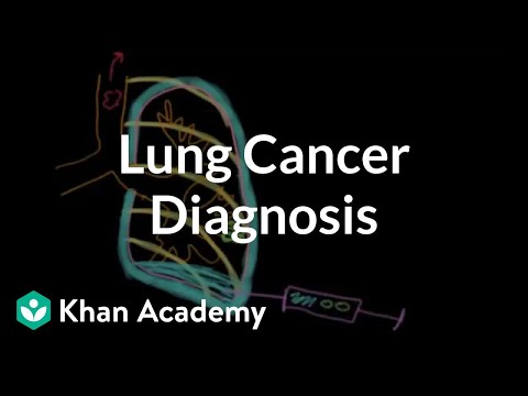 Lung cancer diagnosis | Respiratory system diseases | NCLEX-RN | Khan Academy