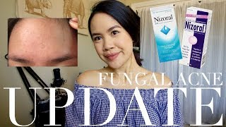 MALASSEZIA FOLLICULITIS/FUNGAL ACNE (Tiny Forehead Bumps