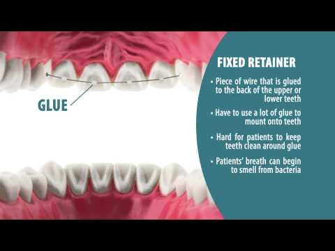 Types of Retainers | Retainer Wear Part 2