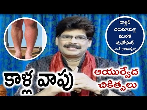 Legs Swelling, Causes and Ayurvedic Treatments in Telugu by Dr. Murali Manohar Chirumamilla, M.D.