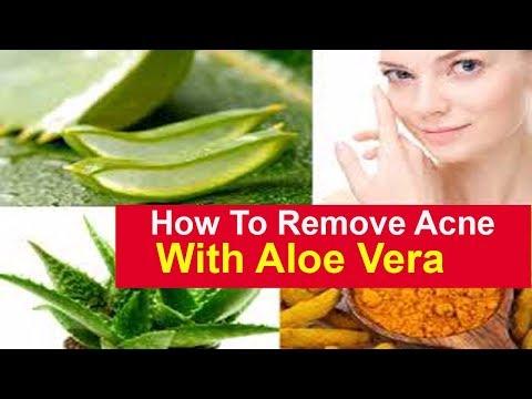 Aloe Vera Acne How To Remove Acne Scars Overnight With Aloe Vera