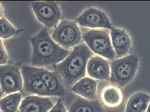 Microscope Imaging Station Cancer Cells behaving badly [sub. ITA]