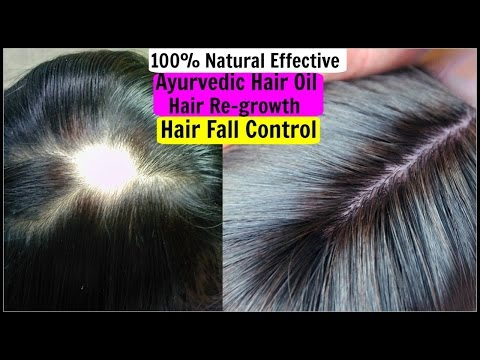 How To Stop Hair fall-Regrow Hair in 7 Days- 3 Natural Ways |SuperPrincessjo