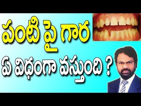 How To Remove Teeth Plaque & Tartar  || Telugu Dental Tips ||  DR RAOS DENTAL || Pachhani danthalu