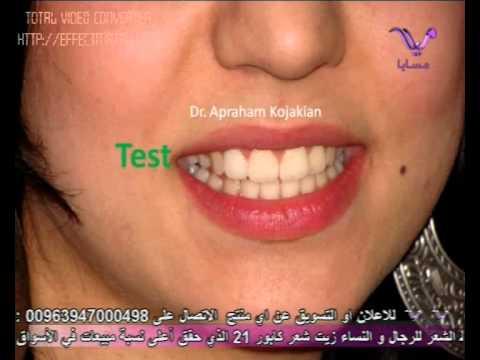 Dr.Apraham Kojakian -Hollywood Smile - An Aesthetic case   د. أبراهام كوجكيان- حالة تجميلية -