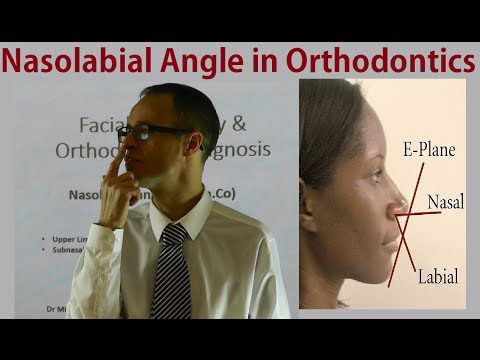 Facial Convexity & Landmarks in Orthodontic Diagnosis: Nasolabial Angle by Dr Mike Mew