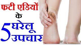 फटी एडियों के उपचार Cracked Heels Home Remedies in Hindi