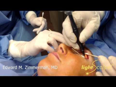 Laser Blepharoplasty (upper eyelid) - LightScalpel CO2 laser