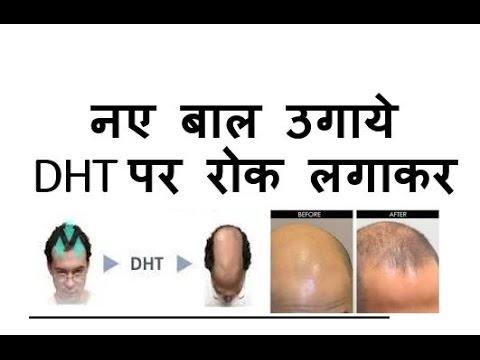 100 % नए बाल उगाये DHT पर रोक लगाकर | Block DHT, Regrowth new hair 100%