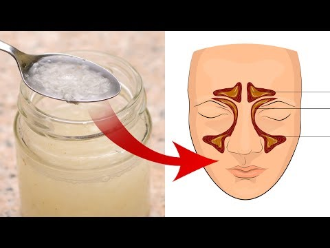 Treat Sinus Infections and Bronchitis with One Little Trick