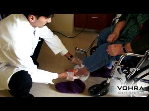 Diabetic Foot Ulcers: Bedside Wound Care