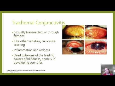 Chlamydia Presentation   McFall