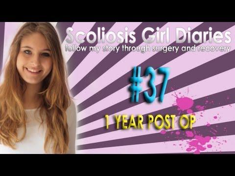 Scoliosis Girl Diaries #37 1 Year Post Op