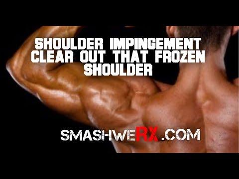 Shoulder Impingement Syndrome? Yeah Do This | Trevor Bachmeyer | SmashweRx