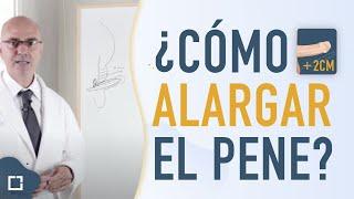 """Muchos hombres consideran que tienen un pene pequeño. (http://www.andromedi.com/medicina-sexual/pene-pequeno/) Sin embargo, es muy importante buscar datos fehacientes para saber qué es lo normal y qué no lo es.  Existen diversas técnicas de alargamiento de pene. El Dr. Natalio Cruz utiliza ambas en su clínica Andromedi: """"desenterrar"""" el pene mediante una reducción de la grasa que lo oculta y """"liberar"""" el pena mediante el corte del ligamento que lo ancla.   En este video el Andrólogo y Urólogo Dr. Natalio Cruz da respuesta a las cuestiones más comunes:  ¿QUÉ ES UN ALARGAMIENTO DE PENE?  ¿EN QUÉ CONSISTE LA INTERVENCIÓN?  ¿CUÁNDO SE DEBE REALIZAR LA CIRUGÍA?   ¿EN QUÉ CONSISTE EL PROCESO?    Si tienes más dudas o quieres más información podrás encontrar más vídeos en nuestra página web  http://www.andromedi.com/videos-sobre-urologia-y-andrologia/   o en nuestro canal de youtube   http://www.youtube.com/channel/UCex1ksYP0lNYhSuBytUxcaA"""
