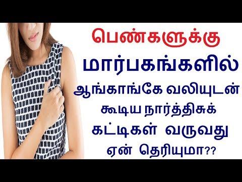 மார்பகங்களில் வலியுடன் கூடிய நார்த்திசுக் கட்டிகள் வருவது ஏன்? Fibrocystic Breast Disease in tamil