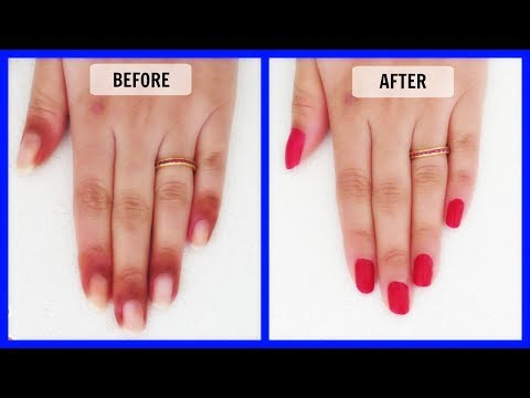 How to get rid of dark skin around the nails in just 7 Days